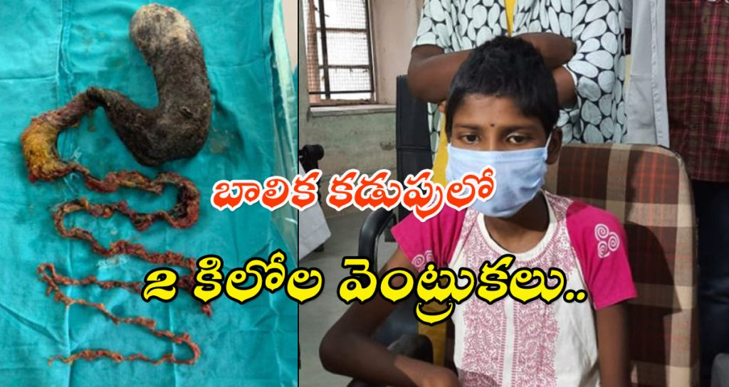 2 KG Hairs in girl stomach